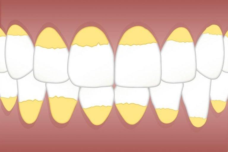 cómo eliminar el sarro de los dientes